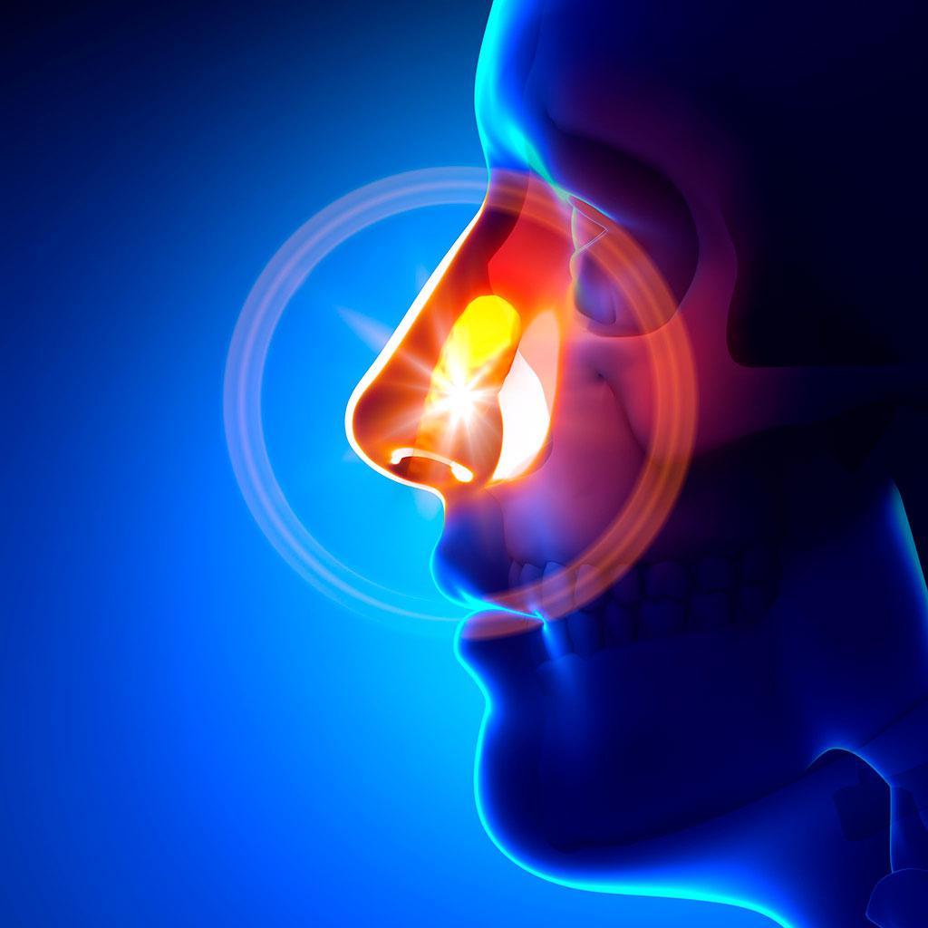 Rinosinusite cronica: dai sintomi alla diagnosi
