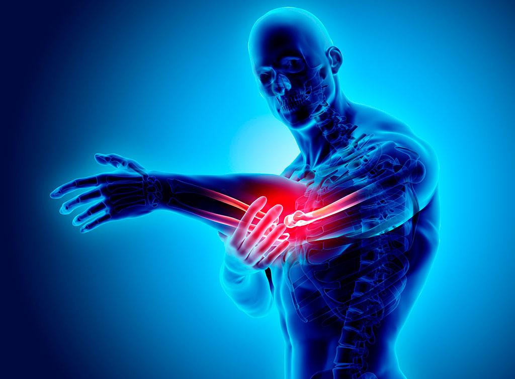 Epicondilite: sintomi, diagnosi e cura