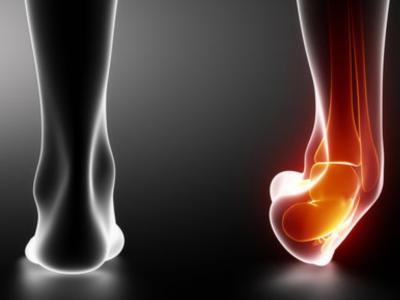 Distorsione della caviglia: cos'è e come si tratta