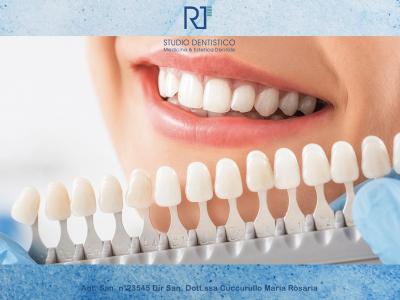 Inestetismi dei denti? Scopri cosa sono le faccette dentali