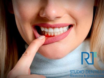 Parodontite: cos'è e come si cura