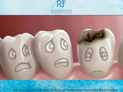 Carie dentale: cos'è, sintomi, cause, diagnosi e cura