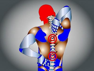La massoterapia come trattamento EBM per la fibromialgia